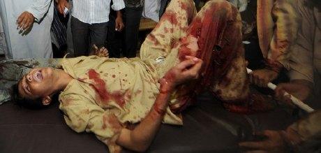 Bomb blasts in Karachi